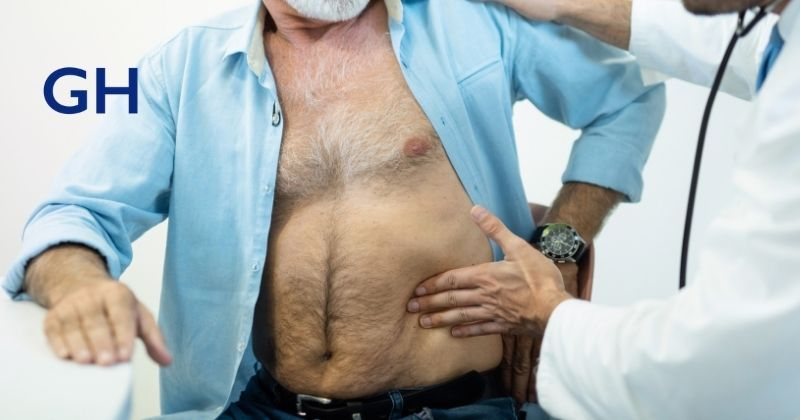 Hernia doctor's hands feel a man's abdomen to evaluate if a hernia needs surgical repair by Dr. Guillermo Higa